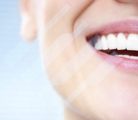 Finding the Best Dental Insurance
